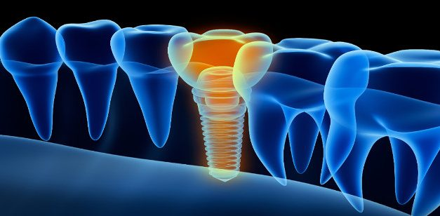 Implantes dentales inteligentes