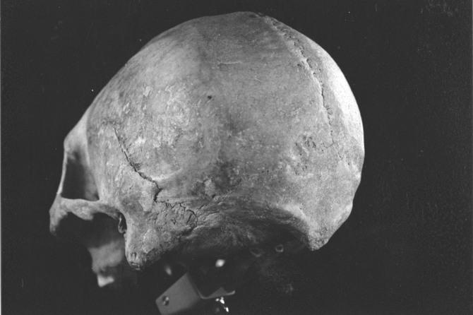 Vista oblicua posterior de un crani fueguino deformat