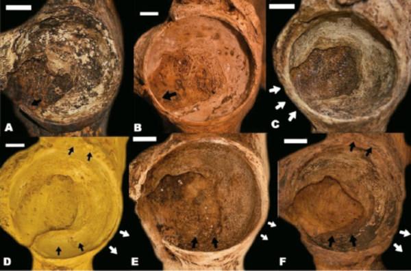 Resultado del proceso de envejecimiento de la muesca acetabular y el perfil del borde acetabular